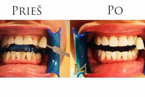 Beyond dantų balinimo rezultatas odontologijos centre MIESTO KLINIKA