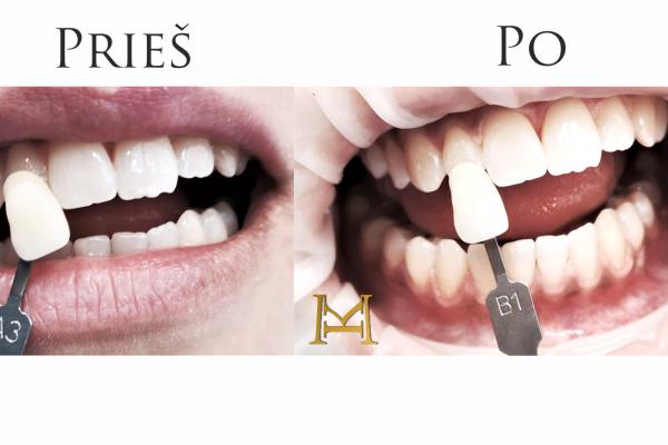 Dantų balinimas Beyond lempa Miesto Klinikoje