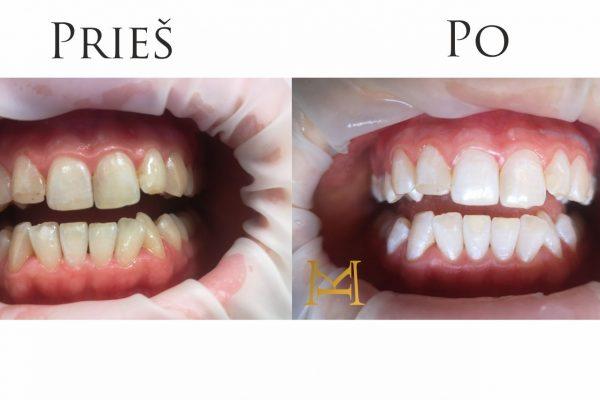 Dantų balinimas Miesto Klinikoje